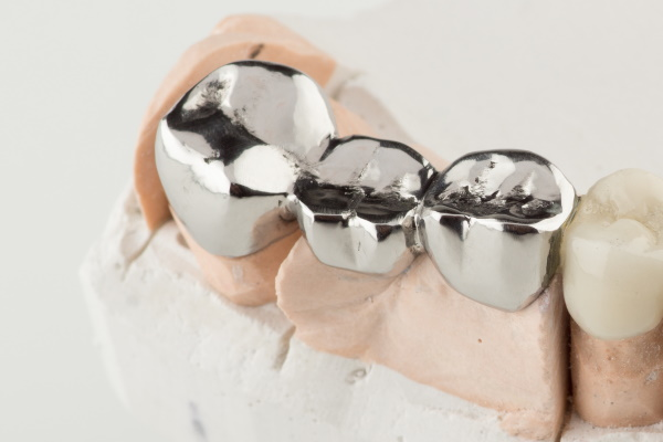 Bridged dental prostheses are made of steel and ceramic paste