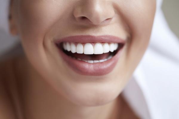 Healthy white smile